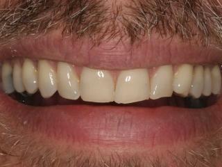 Close-up Smile Before Dental Veneers