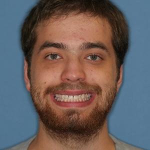 Ryan B/4 Veneers at Montgomery Dental Care