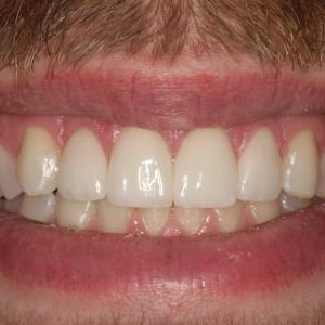 After Smile Whitening & Veneers