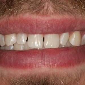 Before Smile Whitening & Veneers