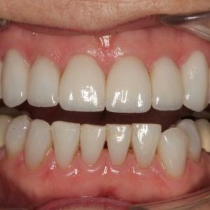 Teeth After Porcelain Crowns & Veneers