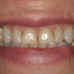 Smile Before Porcelain Crowns & Veneers