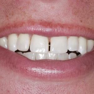 Teeth before dental veneer work