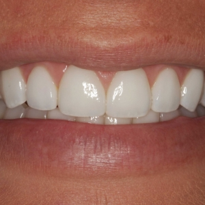 Tessa's Smile After Whitening and Porcelain Veneers