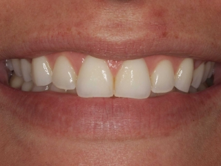 Tessa's Smile Before Whitening and Porcelain Veneers