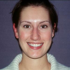 Amy Before Single Veneer Crown