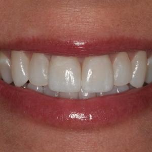 Lisa's Smile After Single Veneer Crown