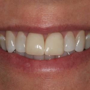 Lisa's Smile Before Single Veneer Crown