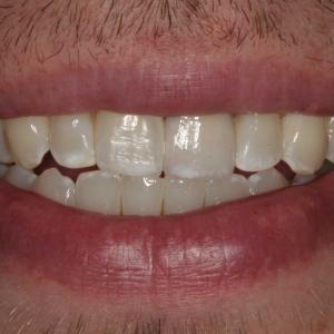 Ty's Smile After Single Veneer Crown