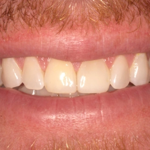 Pat's Smile After Tooth Bonding