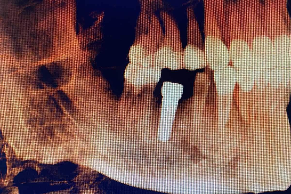 Dental implant specialist Woodbury, MN